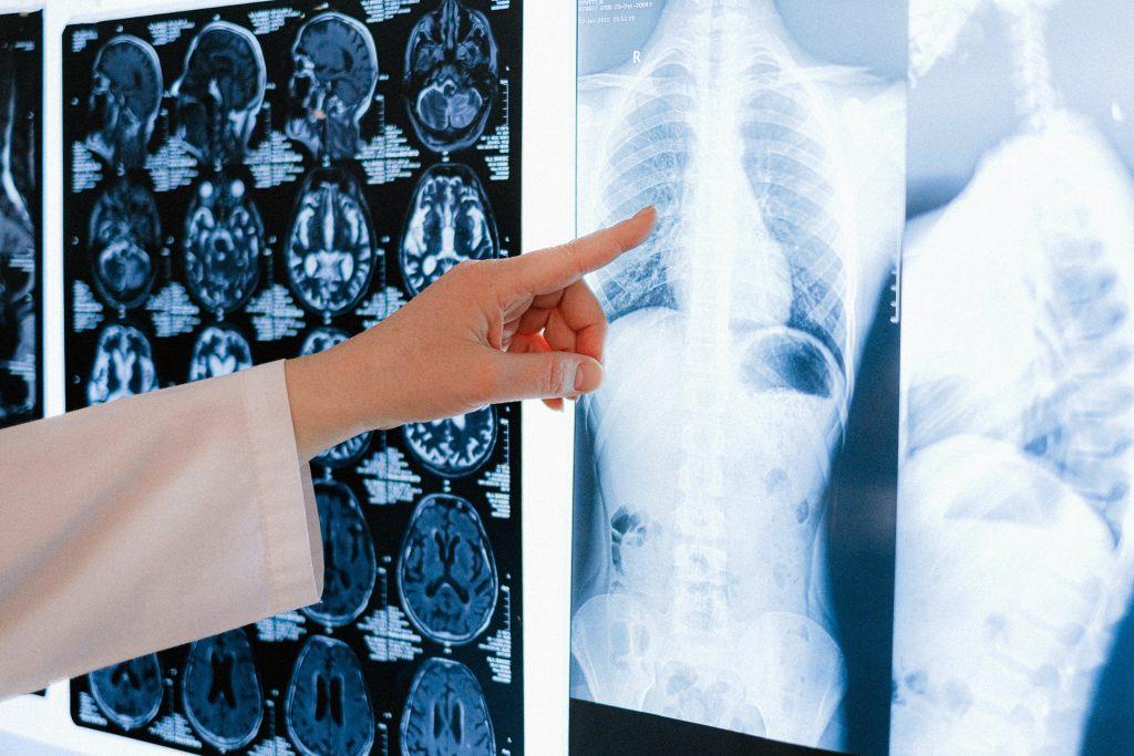 Wpływ wapowania na zdrowie i płuca